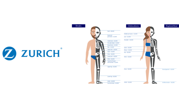 Zurich's Claims Stats highlight Fracture cover is not just for active clients